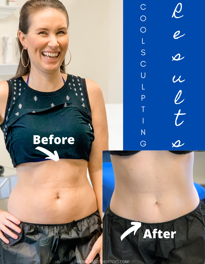 coolsculpting results before and after